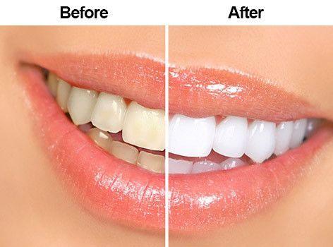 zoom-teeth-whitening-in-abu-dhabi