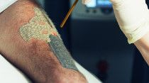 Laser Tattoo Removal at Corpofino, Abu Dhabi