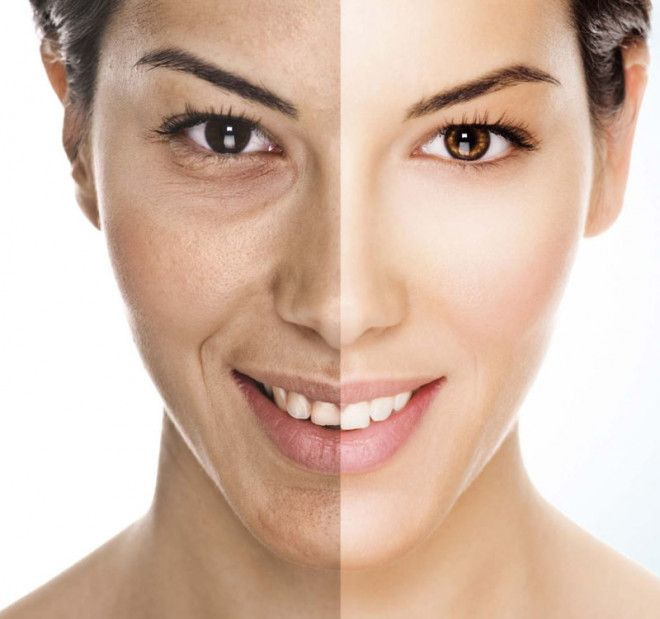 Carboxy Therapy for Dark Eyes and Stretch Marks with Corpofino   Abu Dhabi