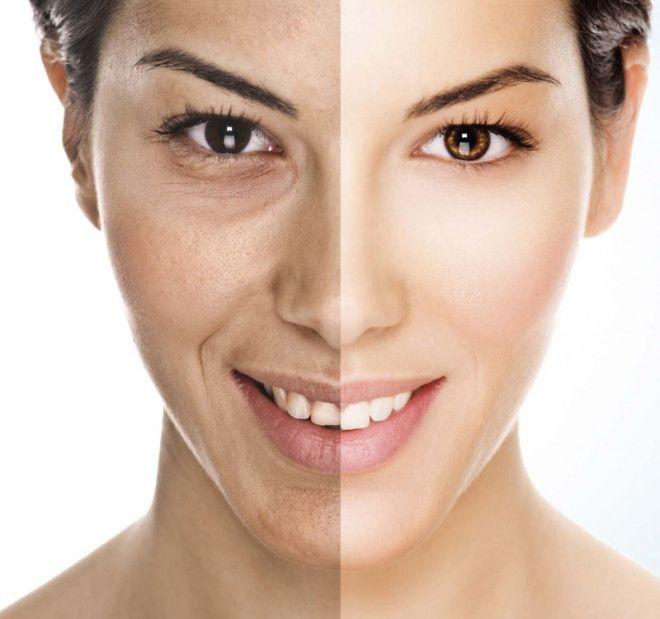علاج الكاربوكسى للهالات السوداء و ترهل الوجه مع كوربوفينو | أبوظبى
