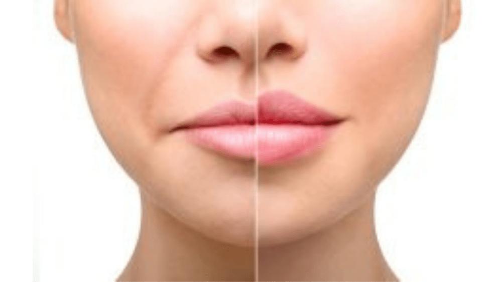 Corpofino Dermatology Clinic LLC | Special discount | Abu…