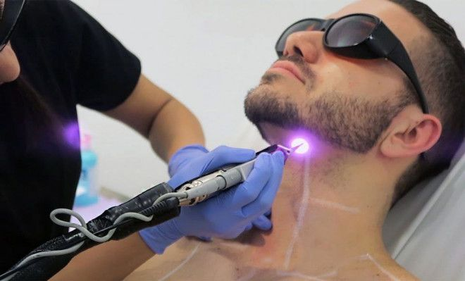 Limited Offers on Laser Hair Removal for Men in Abu Dhabi | Bella Medical Centre