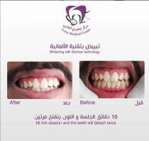 Laser Teeth Whitening Treatment in Al Ain | Ivory Medical Center