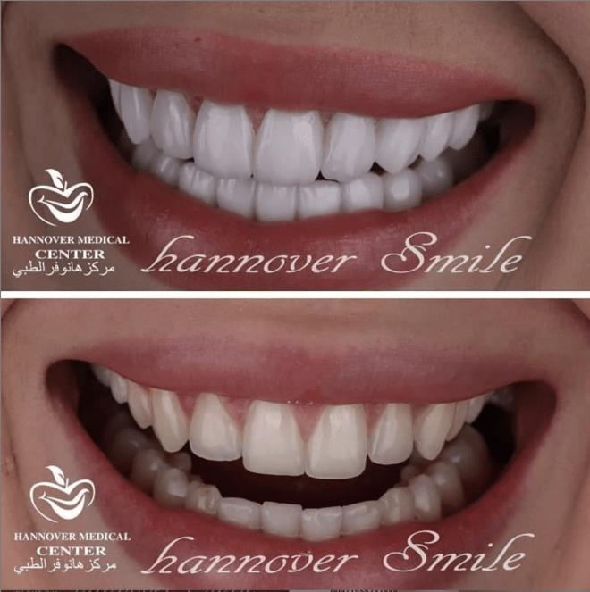 خصومات علي فينير الاسنان - تركيب فينير سناب اون في  الشارقة | مركز هانوفرالطبي