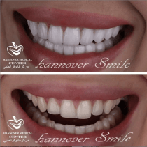 Snap-on Smile | Removable Veneers in Sharjah | Hannover Center