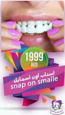Snap on Veneers in Al Ain | Snap on Smile at Ivory Medical Center
