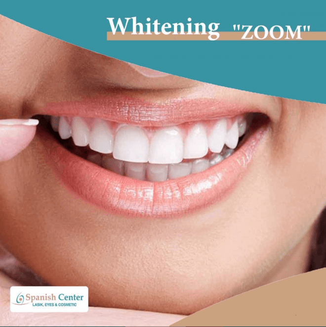 National Day Special Offer: Zoom Teeth Whitening in Jumeriah | Spanish Center Dubai