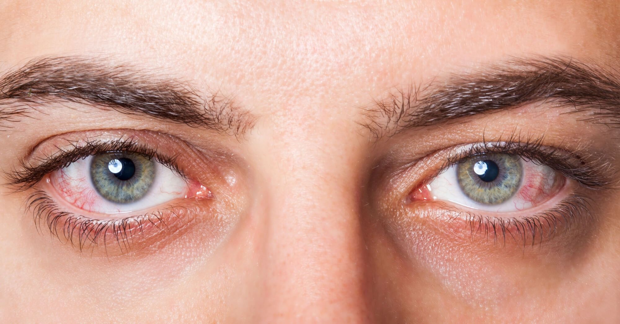 Laser Eye Care & Research Center | Uveitis Treatment