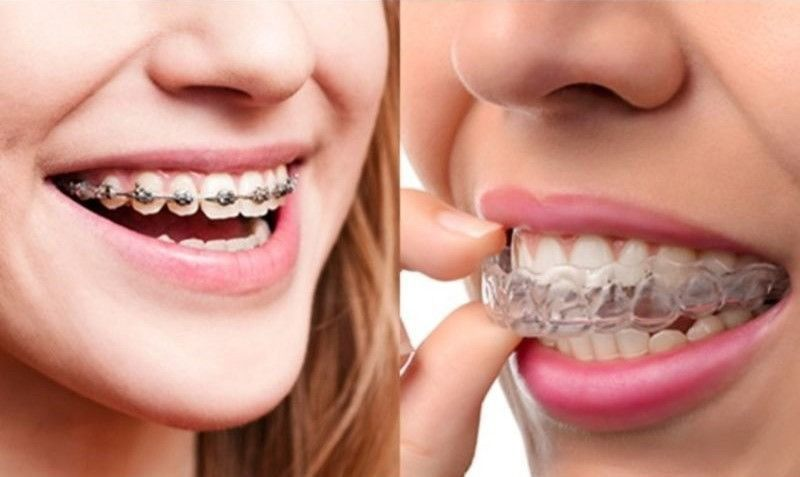 Invisalign vs. Braces: Choosing the best way to a better smile