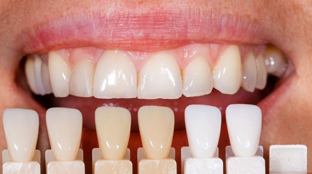 Veneers in Abu Dhabi
