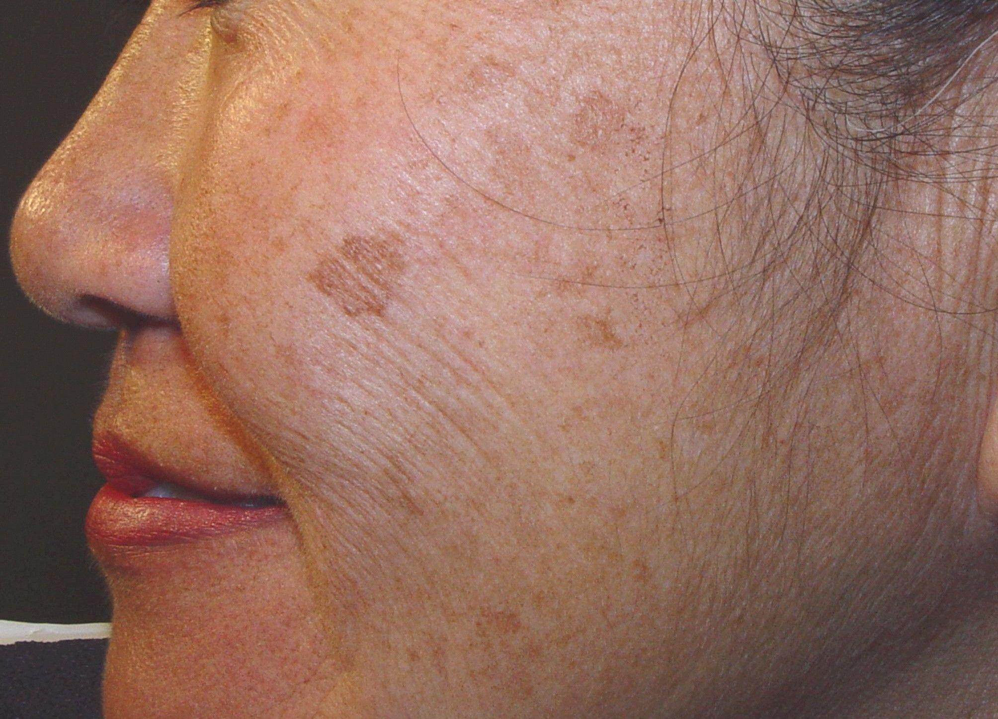 hyperpigmentation after laser