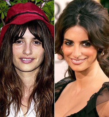 famous celebrities before and after