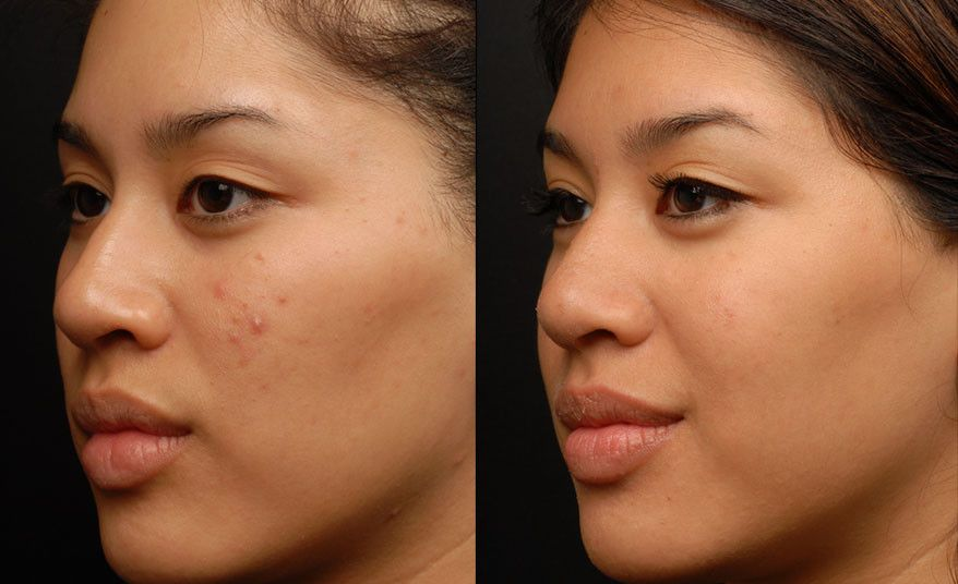 Ematrix Skin Rejuvenation