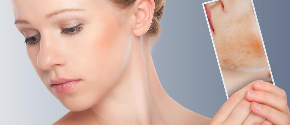 Melasma Treatment in Abu Dhabi
