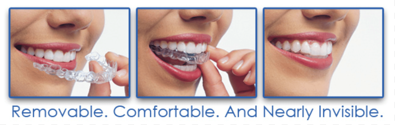 Benefits of using Invisalign