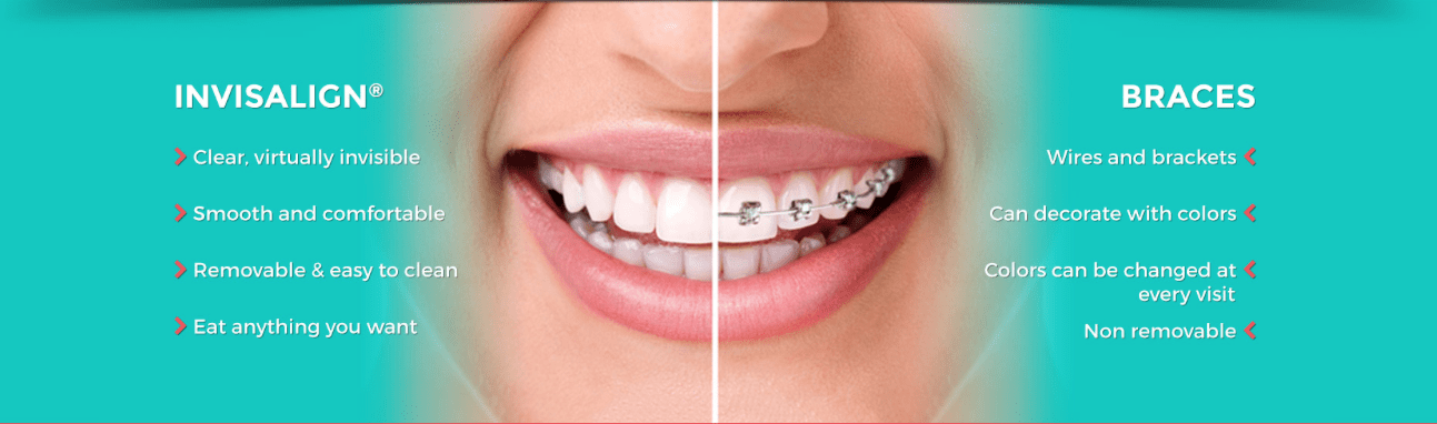 Better Smile with Invisalign- Invisalign vs Braces