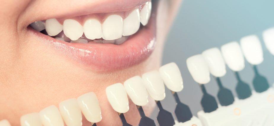 Teeth Veneers in Dubai