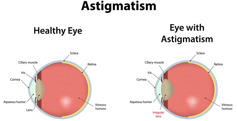 Astigmatism dubai