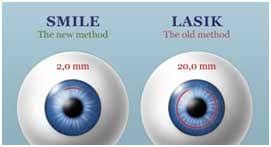 Laser Eye Care & Research Center 9