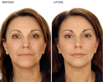 Dubai Cosmetic Surgery 0