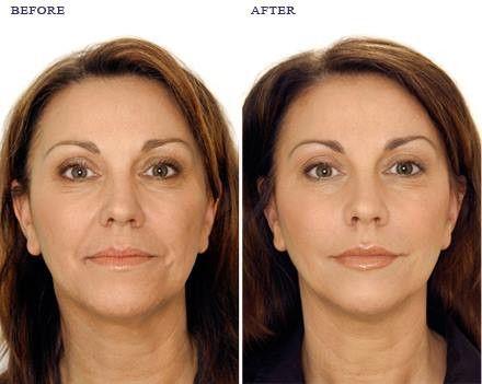 Dubai Cosmetic Surgery 0